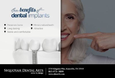 Recommended Dental Implants Knoxville TN - 37919- Dr. Pablo Foncea