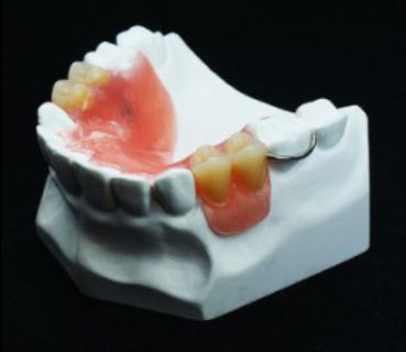 Choose Immediate Partial Dentures to Replace Missing Teeth