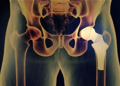 Consult a Specialist for Minimally Invasive Hip Replacement in Plano, TX