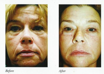 Natural Facial Looks with Wrinkles Laser Resurfacing