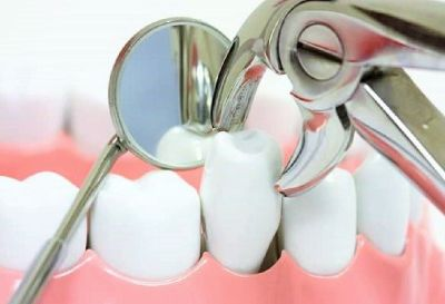 Book an Appointment for Tooth Extraction Anchorage AK