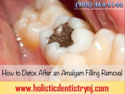 Dr. Philip Memoli - Mercury Detoxification Treatment NJ by Holistic Dentistry | Call 908-464-9144