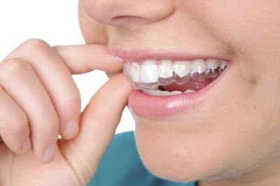 Looking for the Best Invisalign Treatment in Colorado Springs?
