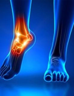 Looking for Foot and Ankle Specialist in Texas? Schedule an appointment through THSOC!