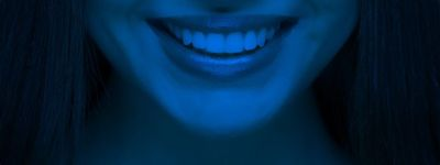 Laser Teeth Whitening | Zoom Whitening