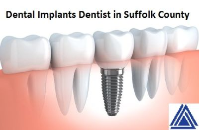 Find Dental Implants in Suffolk County