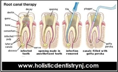 Dr. Philip Memoli - Root Canal Alternative Treatment by Holistic Dentistry NJ