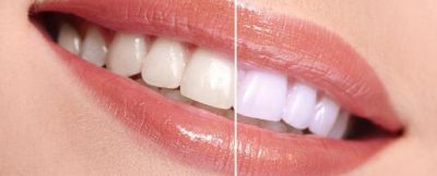 Teeth Whitening in snellville