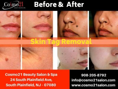 Best Skin Tag Removal in South Plainfield