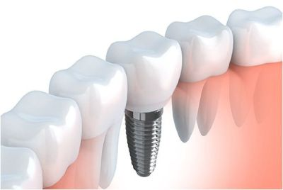 Dental Implant in Columbia, Lexington, SC