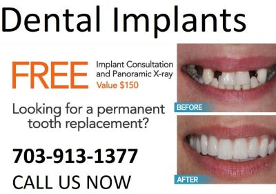 Reliable Dental Implant in Virginia Call 703-913-1377
