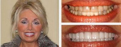 Porcelain Veneers: Cost, Reviews, Before & After - Dr. Jenifer Back