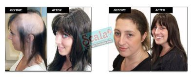 Hair Replacement in Dilsukhnagar Hair Extensions For Women Hair Fixing Systems in Hyderabad