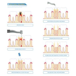 Do You Need Root Canal Therapy Specialists in Dallas TX
