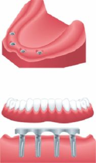 Get A Beautiful Smile With Full Denture Implants - Evergreen Denture Center