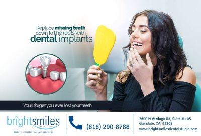 Certified Dental Implants Glendale CA - Dr. Carlos Garcia