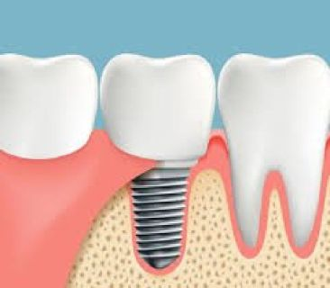 Best Dentures Implant Centre in Snellville.