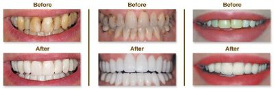 Looking for Cosmetic Dentistry in Bloomington MN?