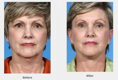 Face Lift Houston - Dr Ernest Layton