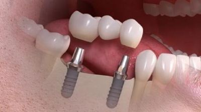 Choose Dental Implants Costs for Brighter Smile