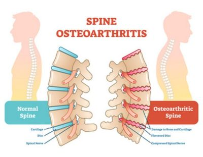 Get Treatment For Spinal Stenosis in Plano, Tx