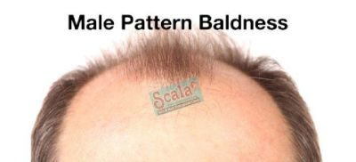Baldness Cure in Hyderabad  Hair Fall Treatments in Hyderabad  Lowest Price Hair Transplant Clinic