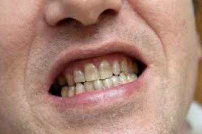 Snellville Family Dentist: The Best Local Dentist Near Me