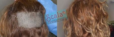Hair Transplant Clinic in Madhapur Best Hair Transplant Clinic in Gachibowli Hair Transplant For Fem