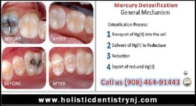 Dr. Philip Memoli - Mercury Detoxification Treatment in NJ/NYC | Call 908-464-9144