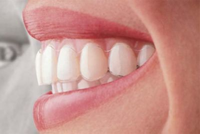 Looking for the Best Invisalign in Littleton?