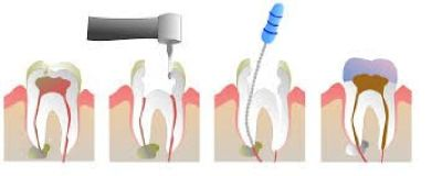 Schedule Your Appointment for Root Canal Treatment in Midvale, Utah