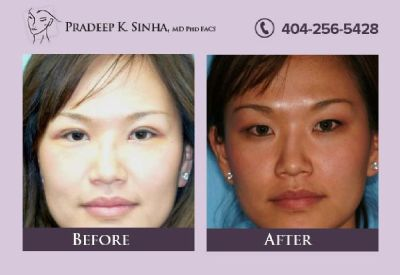 Laser eyelid surgery in Atlanta, GA - Dr. Pradeep Sinha