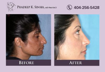 Meet Dr. Pradeep Sinha - The Leading Revision Rhinoplasty Surgeon In Atlanta