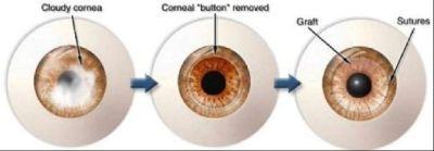 Corneal Disease Treatment & Transplant Surgery in Virgin Islands