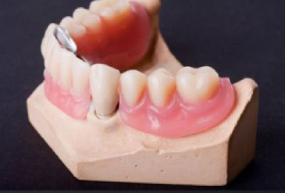 Same Day Denture Repair Services Vancouver WA