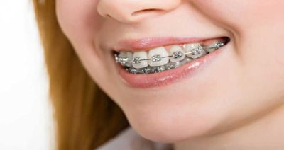Don't let damaged teeth ruin your smile and facial aesthetic