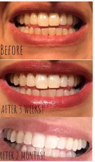 Whitening toothpaste that works fast and is affordable!
