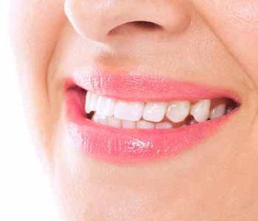 Get Professional Teeth whitening in Philadelphia