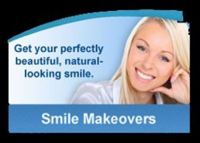 Going For Teeth Whitening? Know Aftercare Hacks