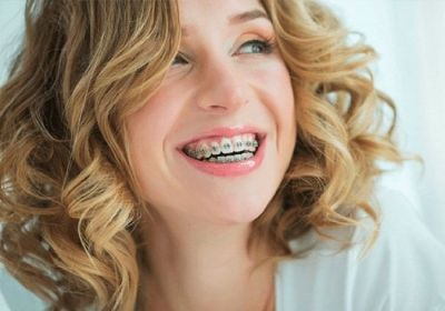 Get the best Lingual Braces in Colorado Springs!