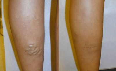 A Short Glimpse at Laser Vein Treatment Oak Brook