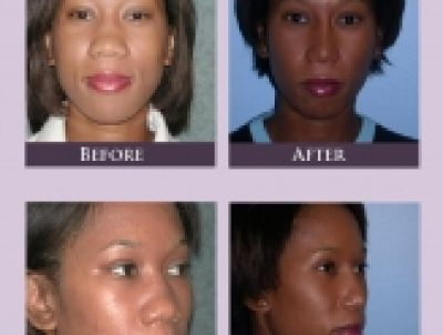Are You Considering African American Rhinoplasty In Atlanta?