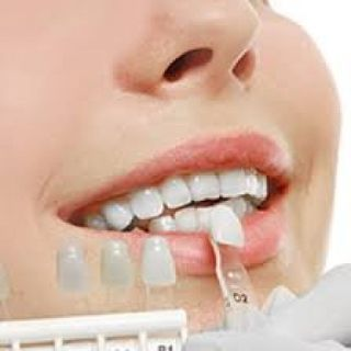Schedule Your Appointment for Veneers in Bountiful Utah