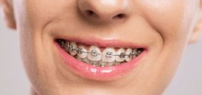 Get Quality Braces in Lehi UT Call 8017688028