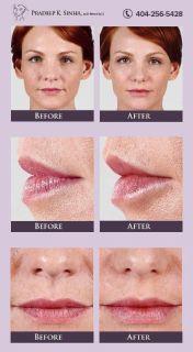 Botox Specialist Atlanta - Dr. Pradeep Sinha