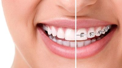 Book an Appointment for Orthodontist in Idaho Falls Call at (208) 356-3300