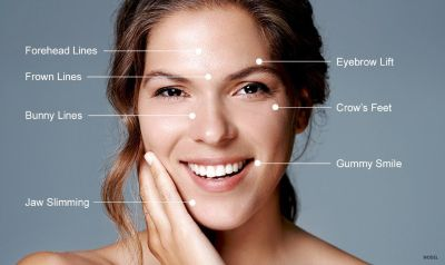 Best Botox near oak brook, IL