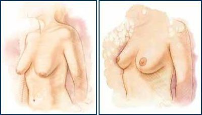 Chicago Cosmetic Surgery   Chicago Plastic Surgery