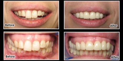 Book Your Appointment for Cosmetic Dentistry Midvale, Utah