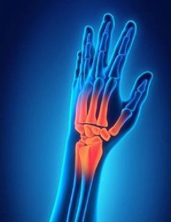 Consult a Specialist for Hand and Wrist Pain in Plano, TX - THSOC